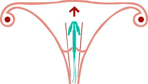 Contraceptive Coils